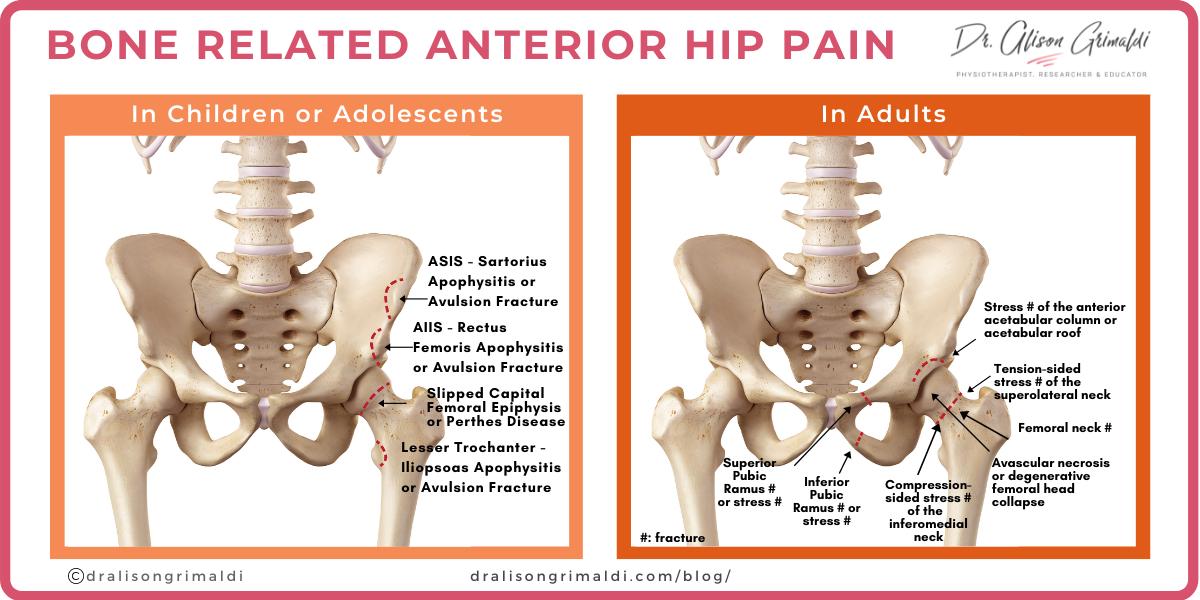 Bone Related Anterior Hip Pain Infographic