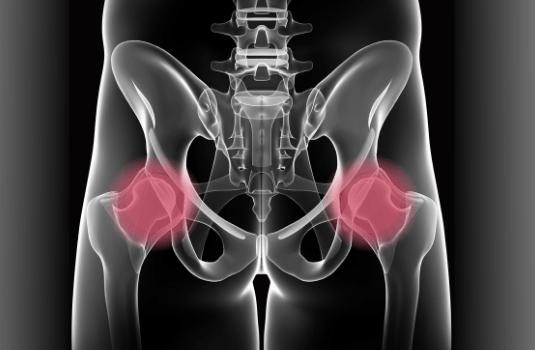 Online Hip Pain Management Courses