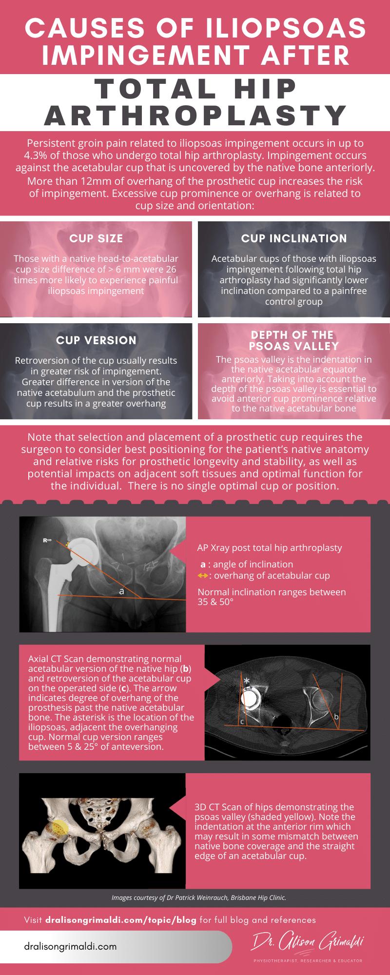 Iliopsoas impingement after THR_Alison Grimaldi Infographic from August 2020 blog