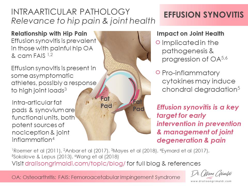 Infographic_Effusion Synovitis_dralisongrimaldi.com
